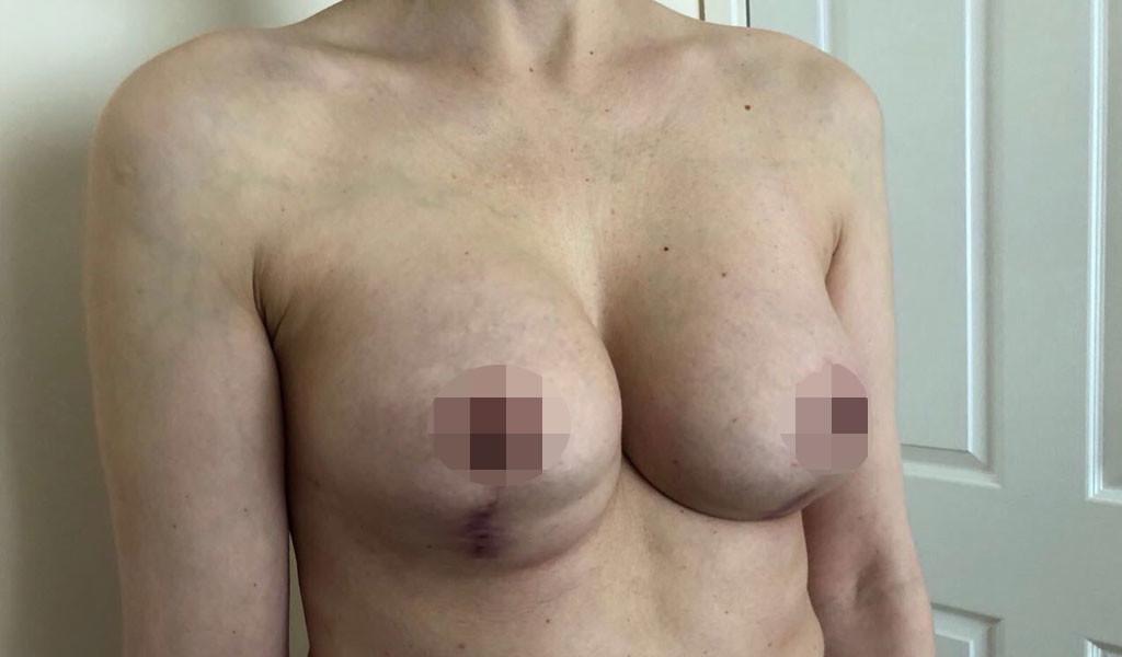 Пациентка Ольга К. после второй операции. Фото ©LIFE
