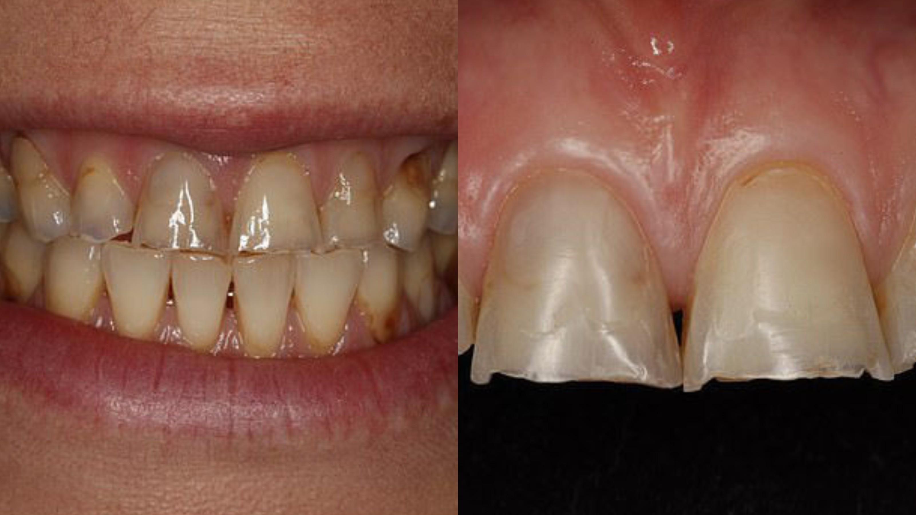 Фото © Advance Dental Practice