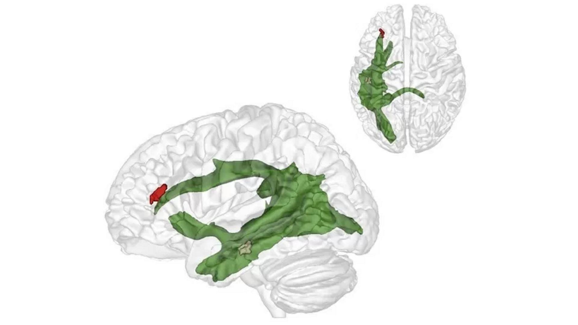 Фото: © neurosciencenews.com