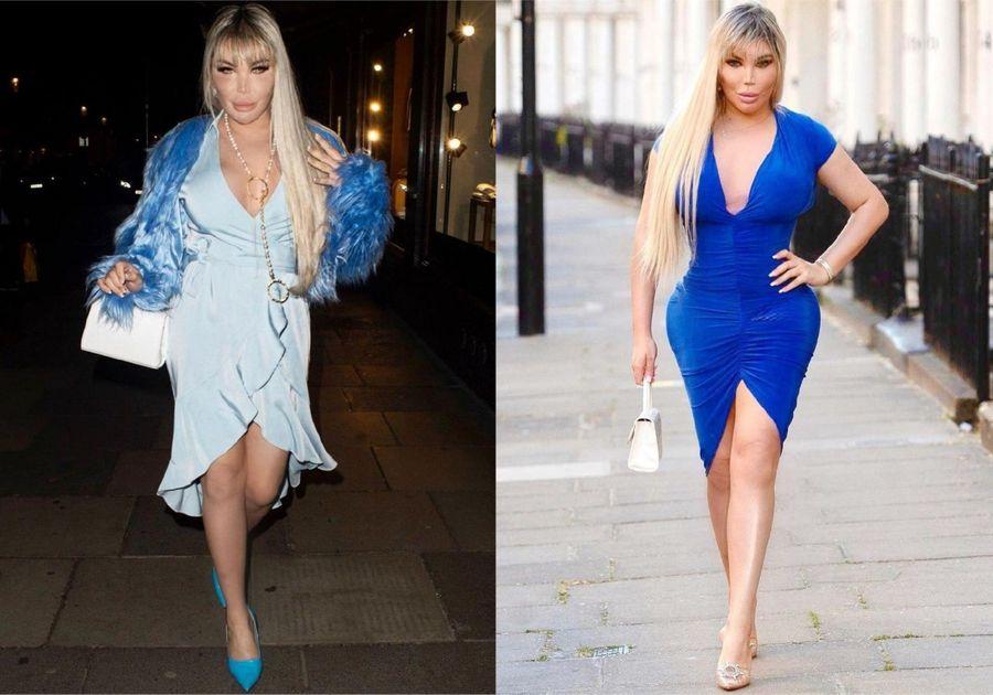 Фото до и после. Фото © Instagram / rodrigoalvesuk