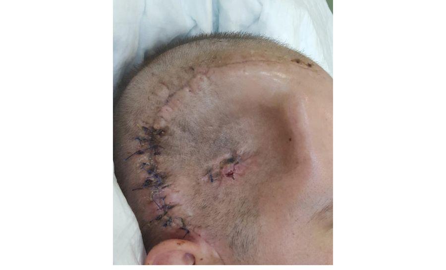 Ислам Хамерзаев после ранения © Личный архив Ислама Хамерзаева