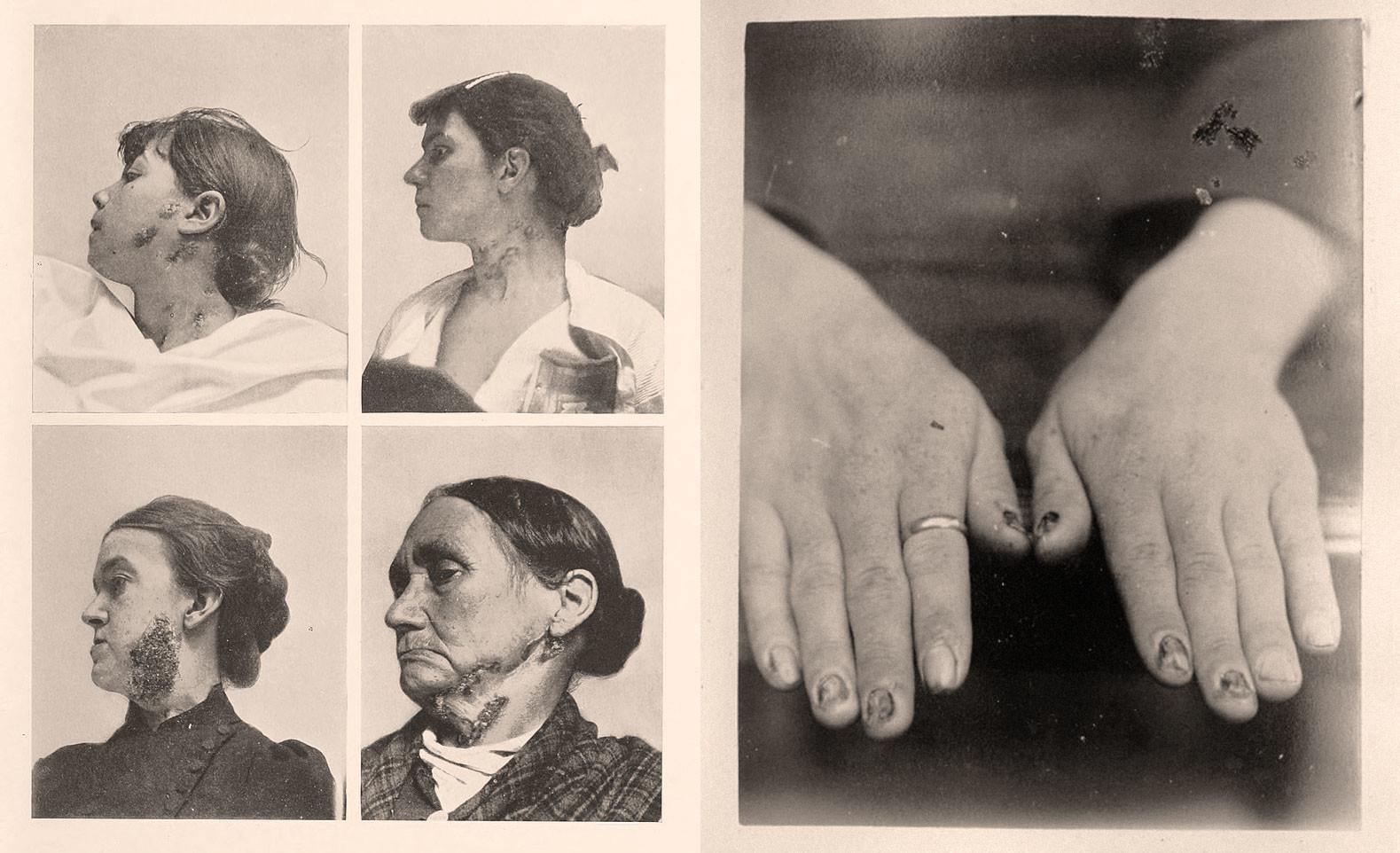 Явления сифилиса. Фото © Wikipedia, © Wikipedia