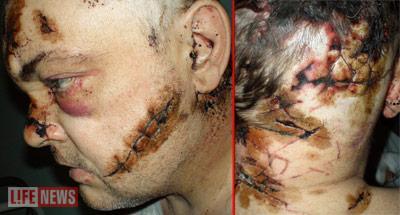 Сергей Тимин остался жив после 126 колото-резаных ранений