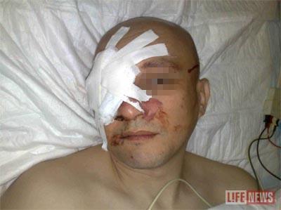 Пострадавшему извлекли пулю в больнице