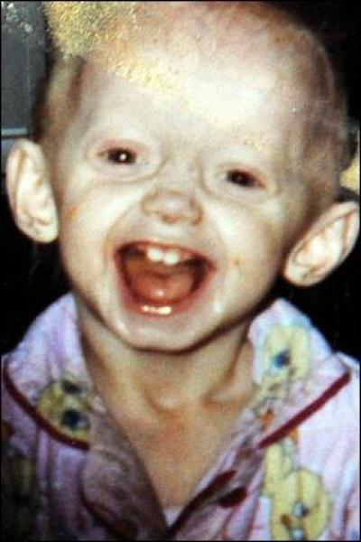 """""""Первый день рождения. Мы только что узнали диагноз. Я не могу поверить, что у нее прогерия"""""""