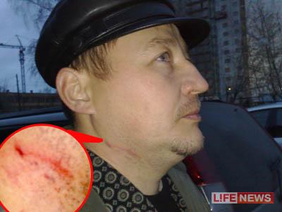 Общение с депутатом оставило следы на шее Андрея Попова