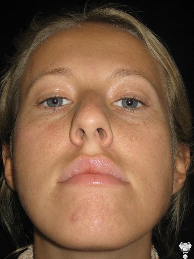Фото Ксении до операции
