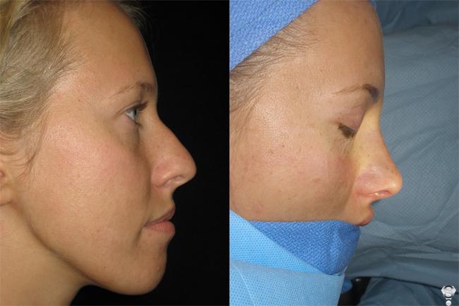 Ксения до и после операции