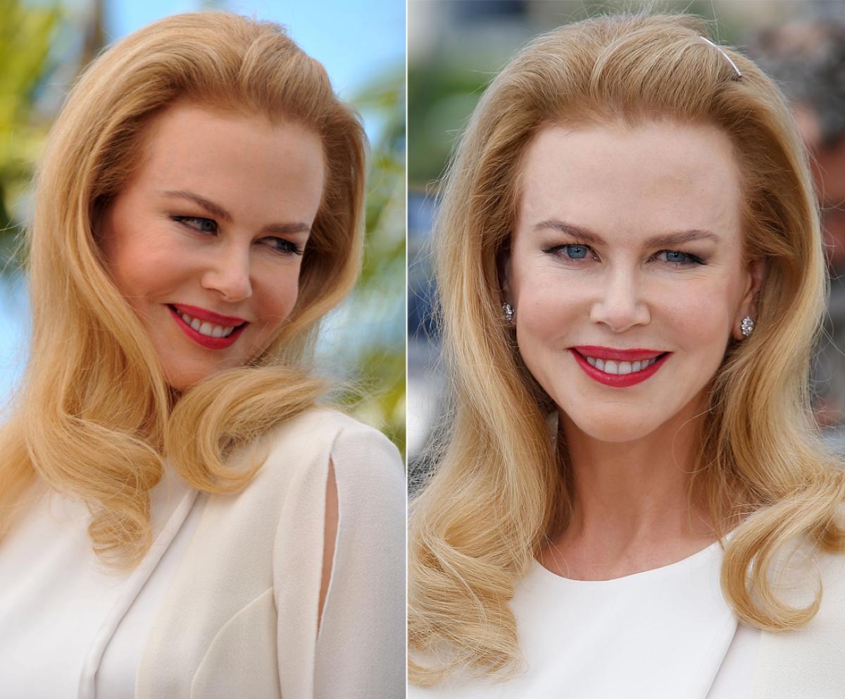 Злоупотребляет уколами красоты и 47-летняя Николь Кидман