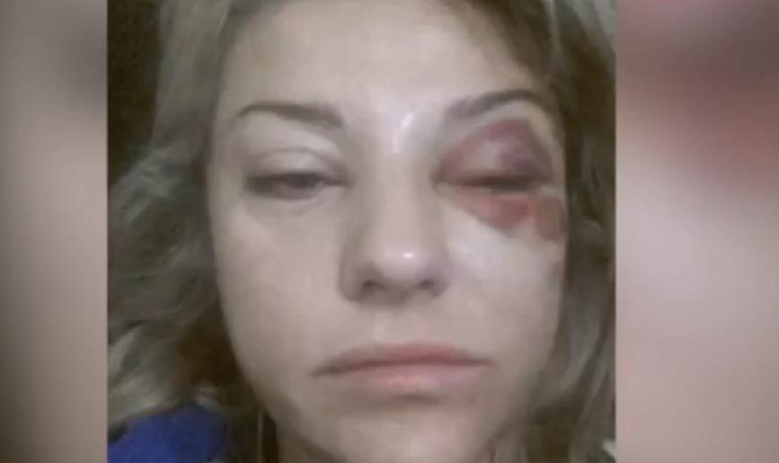 Екатерина Архарова после полученной, по ее словам, 16 октября травмы
