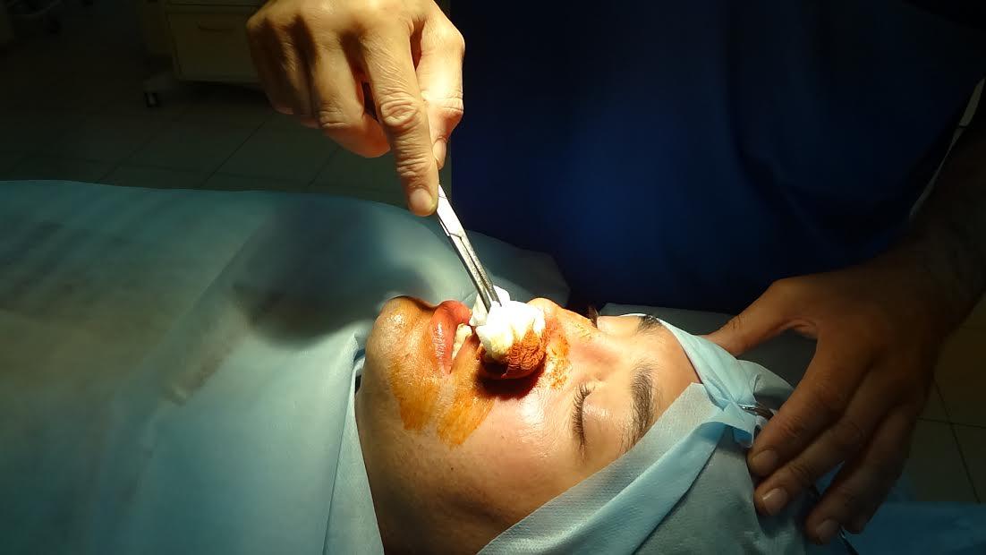 Рустам Солнцев на операционном столе