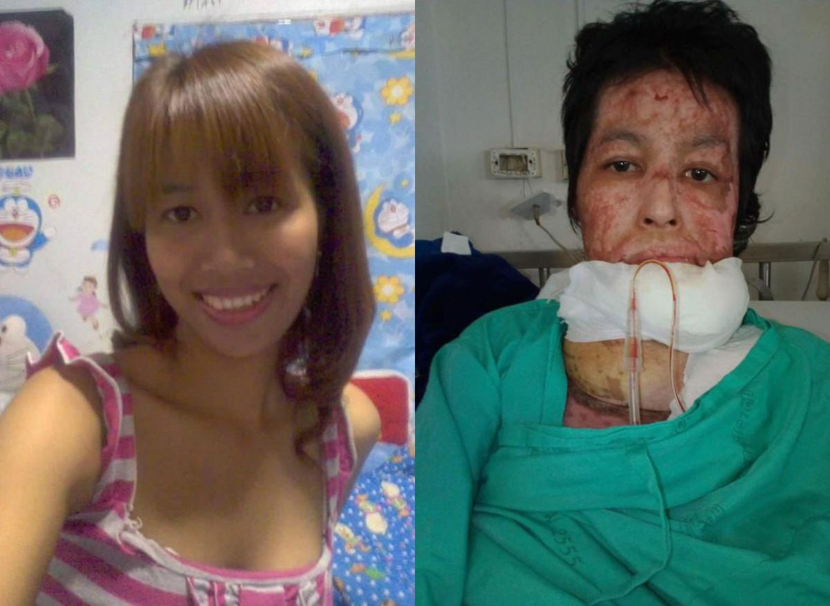 <p>Девушка до и после трагедии. Фото: Соцсети&nbsp;</p>