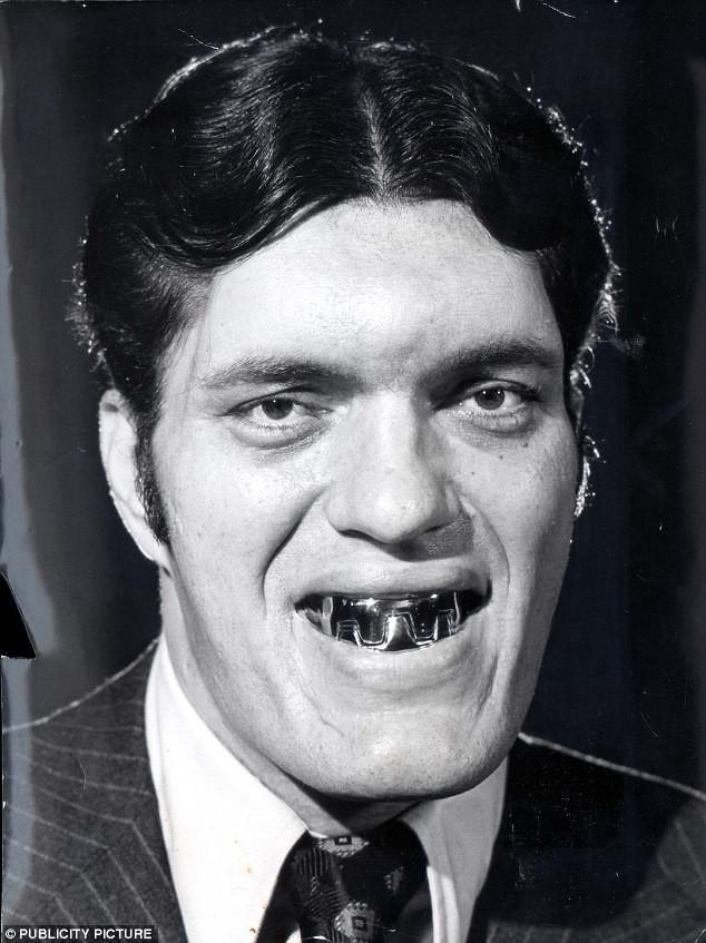 """Акромегалией страдал актёр Ричард Кил, который сыграл персонажа по прозвищу Челюсти в фильме """"Шпион, который меня любил"""" (десятый фильм о британском суперагенте Джеймсе Бонде)."""