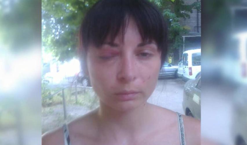 Дарья Мастикашева после пыток СБУ Фото: Facebook