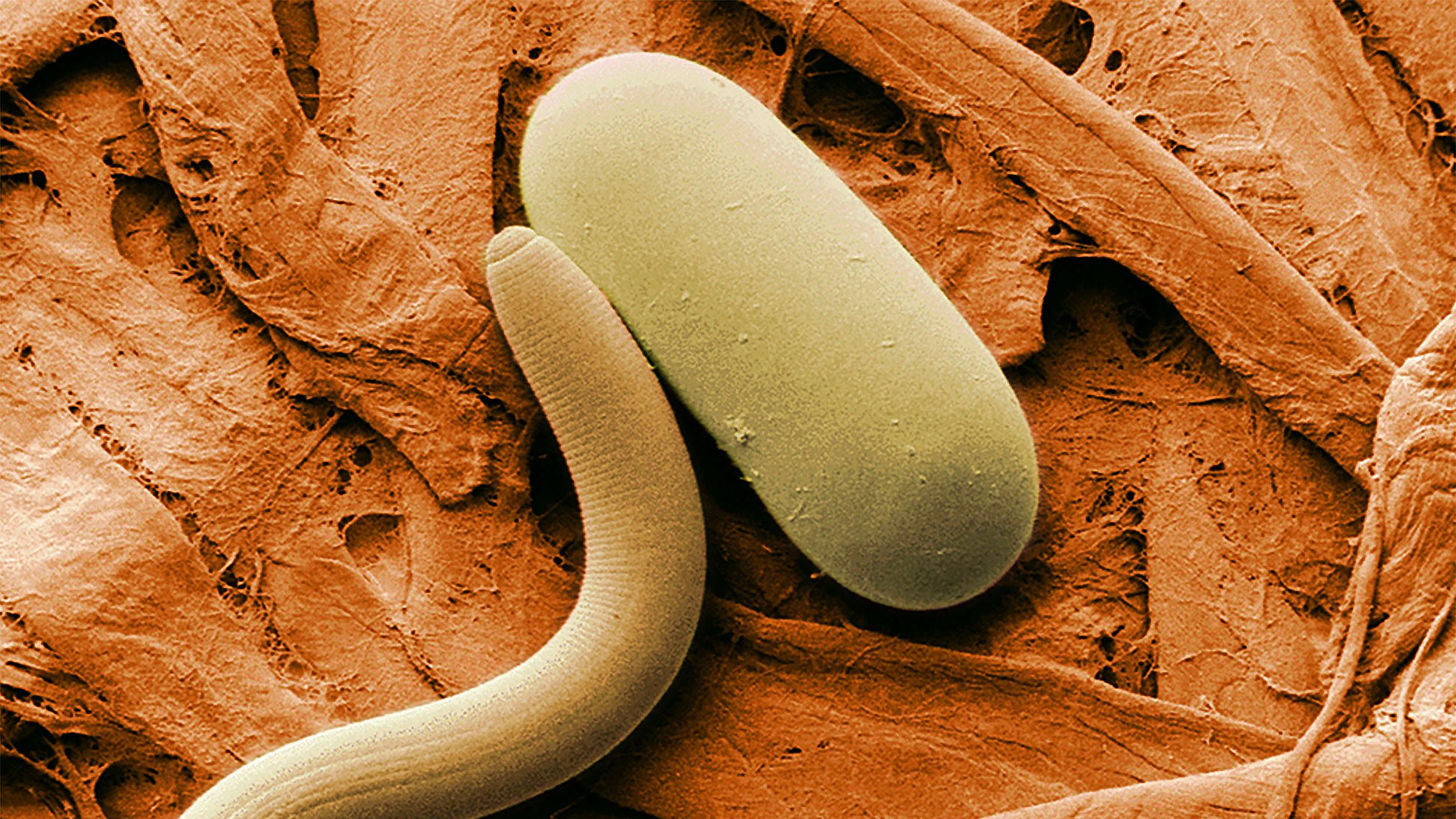 Червяк черный червь червивый