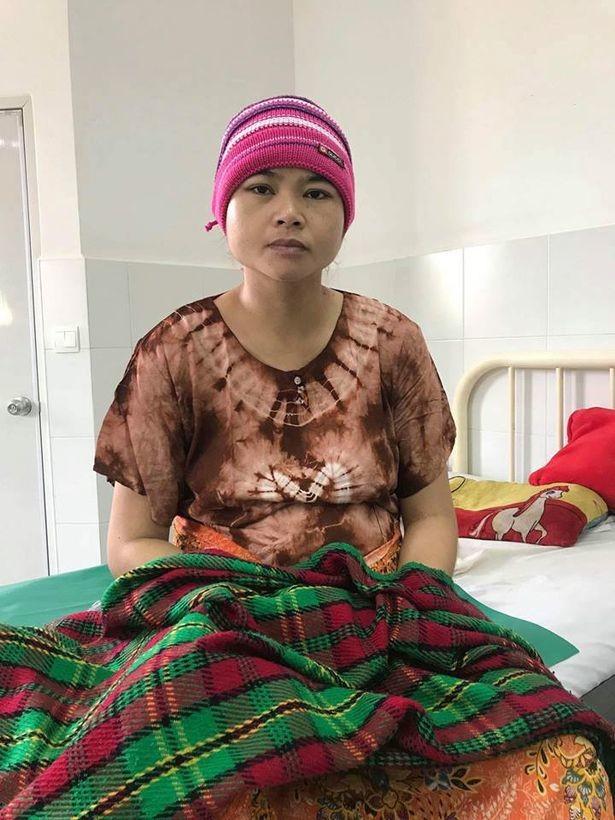 35-летняя жительница провинции Сиемреап в Камбоджи Кэт Мэй, родившая девочек с одним телом на двоих. Фото © viralpress.uk