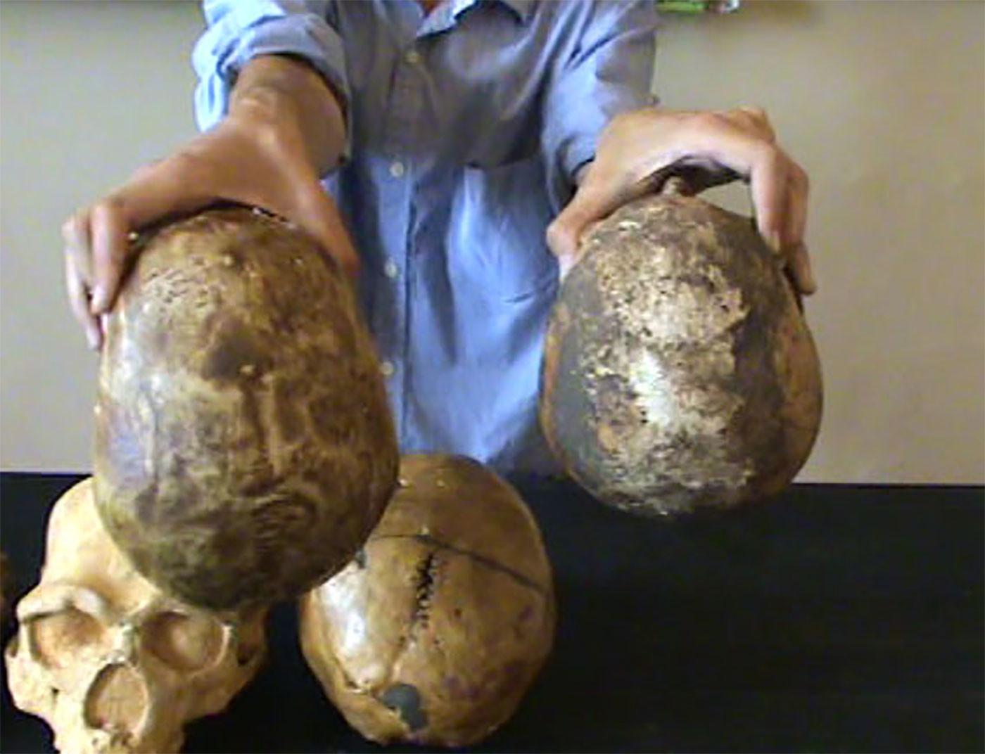 Слева — череп Homo sapiens из палеолита, справа — из нашего времени. Скриншот видео: youtube / Александр Соколов