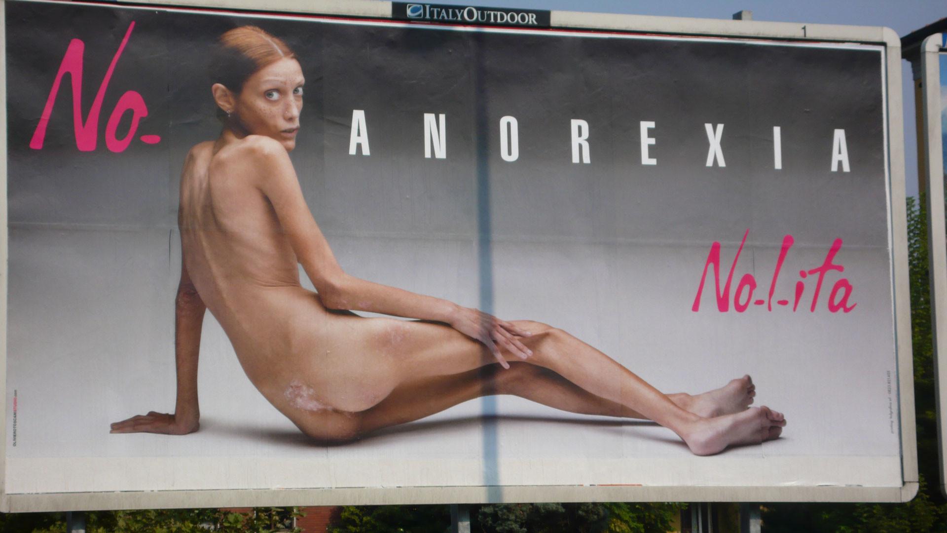 Гигантский плакат с обнажённой истощённой женщиной, часть кампании против анорексии итальянского фотографа Оливьеро Тоскани, в Милане, Италия. Фото: © AP Photo / Alberto Pellaschiar