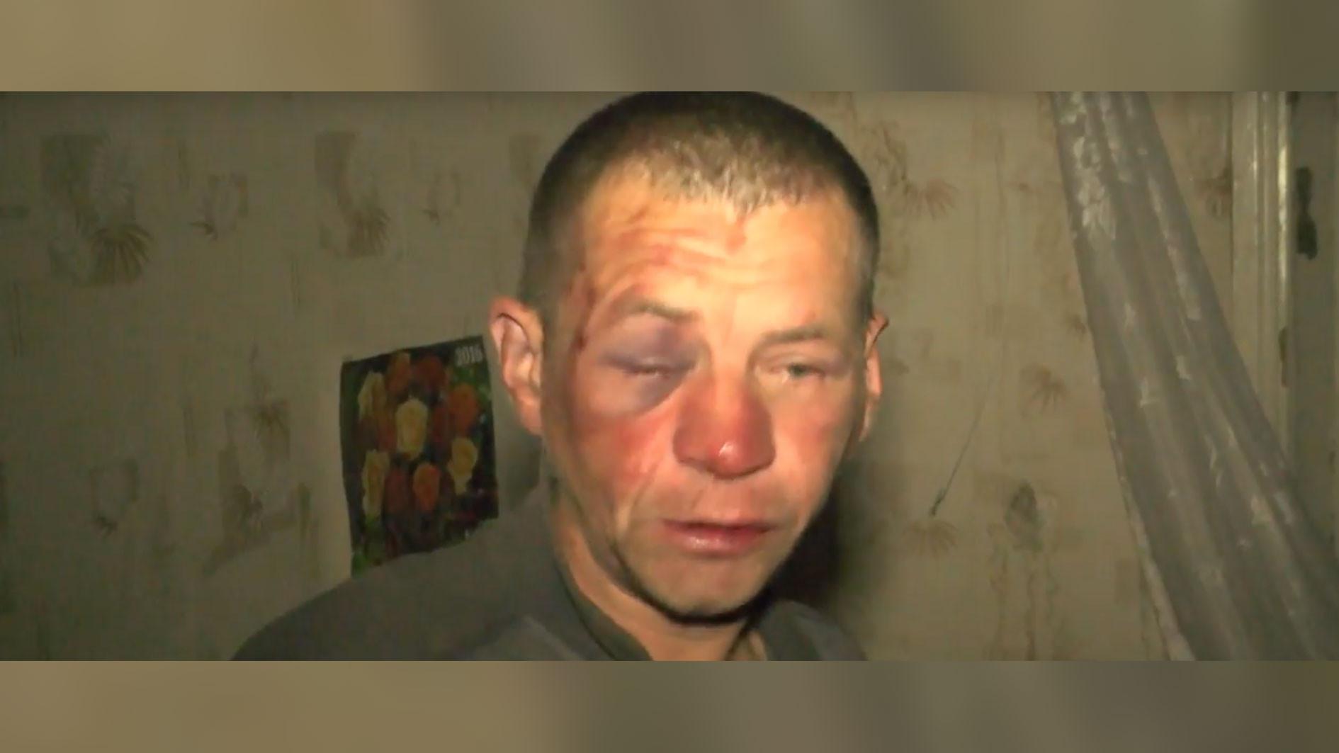 <p><span>Пострадавший бездомный. Скриншот видео &copy; Первый городской канал в Кирове</span></p>