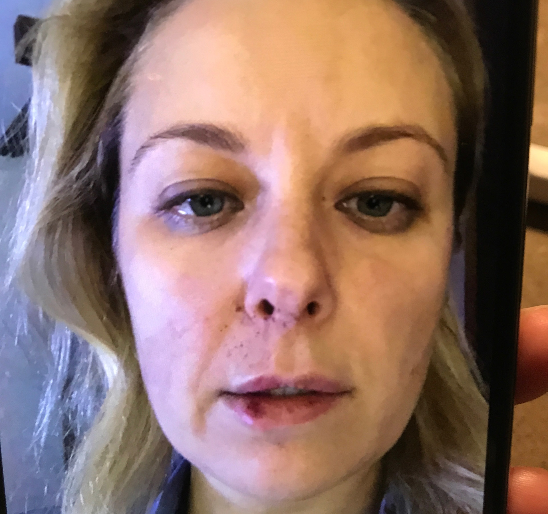 Анна Федосеева после избиения Сергеем Гришиным. Фото предоставлено адвокатом Екатериной Духиной