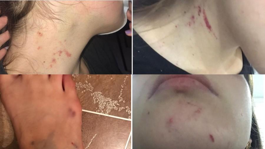 Повреждения у Анны. Фото © Instagram / Софья Савенкова
