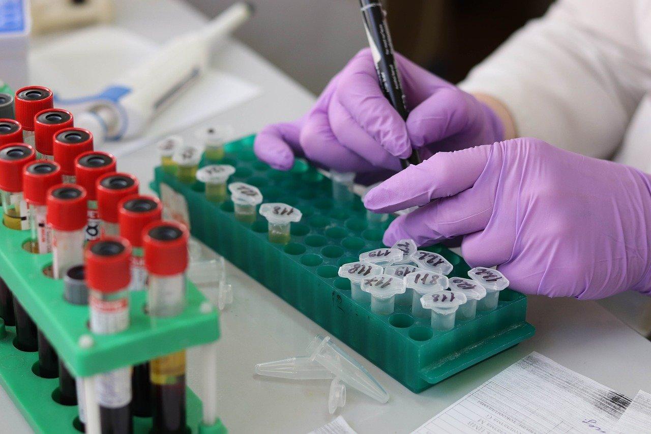 """""""Не время ослаблять нажим"""". В ВОЗ призвали наращивать объёмы тестирования на коронавирус"""