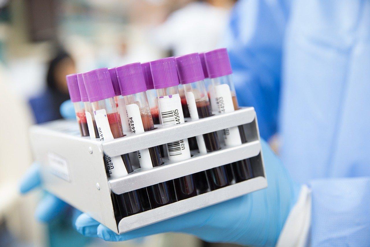 Защита не для всех. Учёные заметили исчезновение антител у переболевших CoViD-19