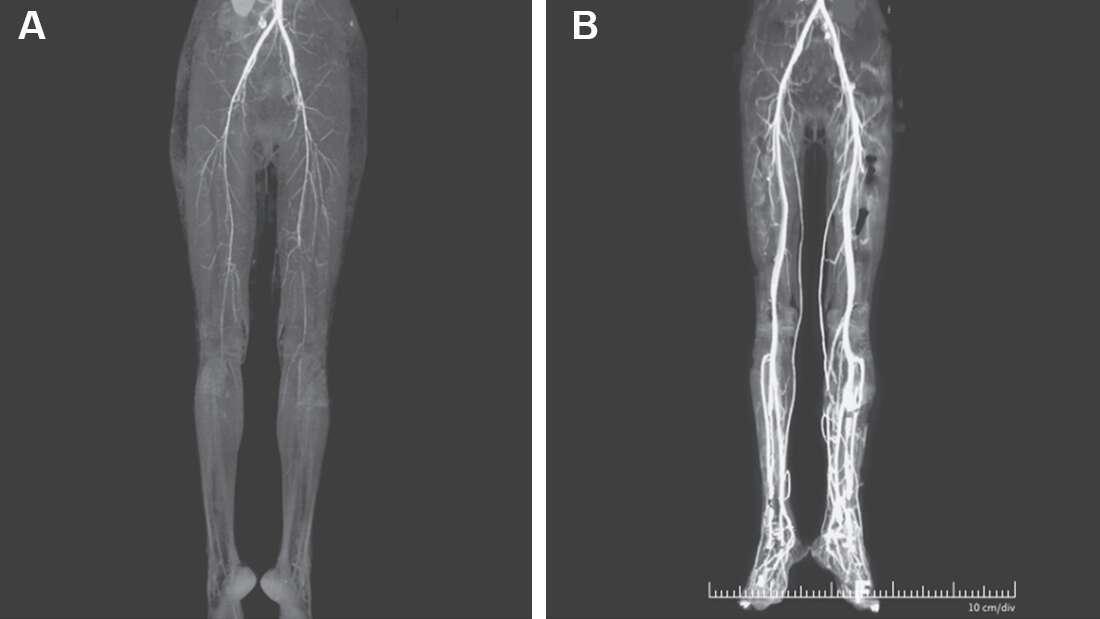 Девушка жаловалась на жжение в ногах, и оказалось, что это симптом смертельного