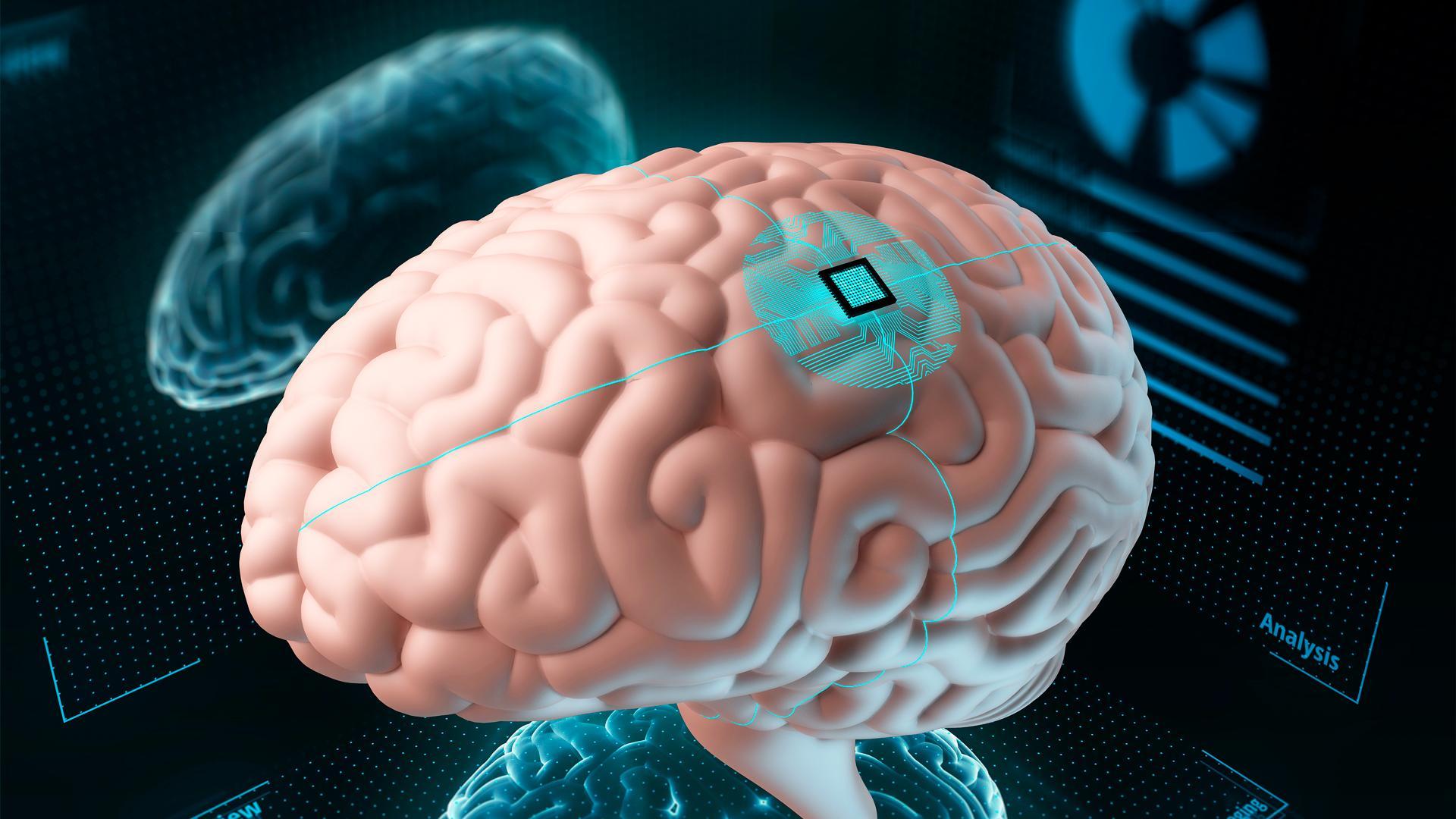 Илон Макс будет устанавливать чипы в мозг человека, и он не первый. История чипирования населения