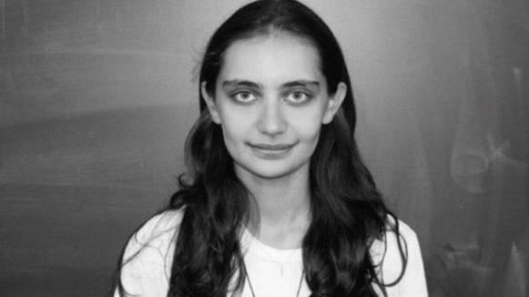 Девушка осталась с вмятиной на черепе, когда на неё с 12-го этажа упал шезлонг: фото после операции