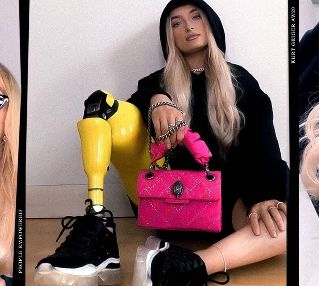 10 фото модели, которая рекламирует обувь, несмотря на то что из-за онкологии она лишилась ноги