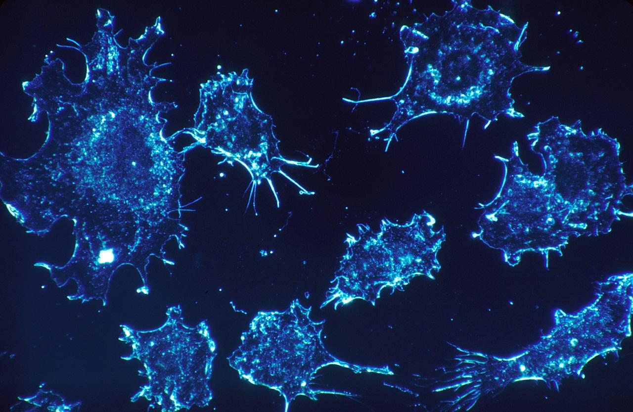 Онколог назвал два продукта, которые увеличивают риск рака