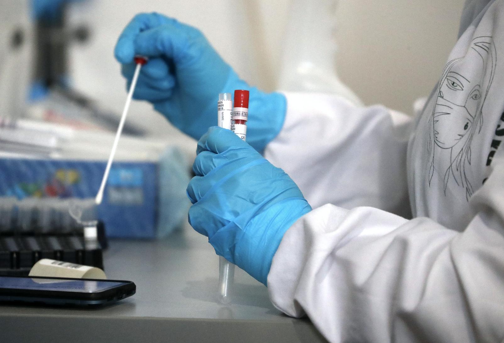 В России за сутки выявили 21 887 новых случаев коронавируса
