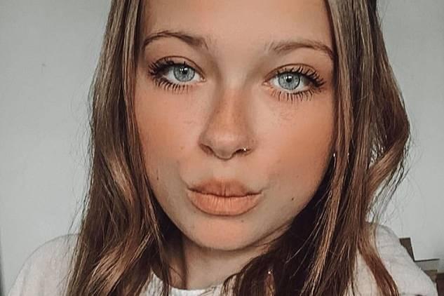 Девушка мечтала о пухлых губах, но превратилась в посмешище, решив сэкономить на мастере