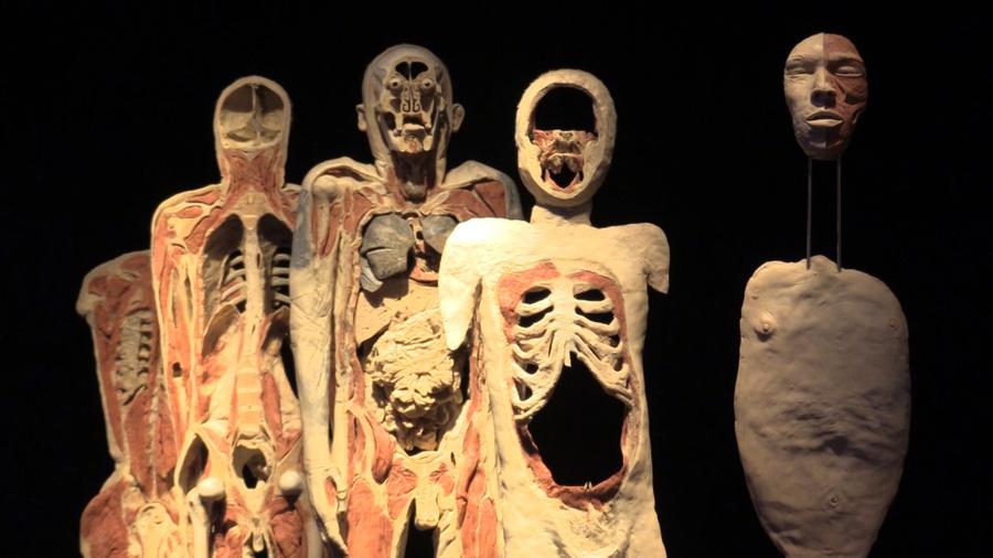 Ещё один экспонат, который показывает, как устроен человек: послойно разрезанное тело. Фото © LIFE