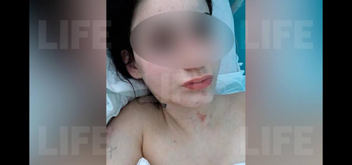 """Хотела выйти из бизнеса"""": Выпрыгнувшая в Барнауле из окна девушка спасалась  от сутенёрши"""