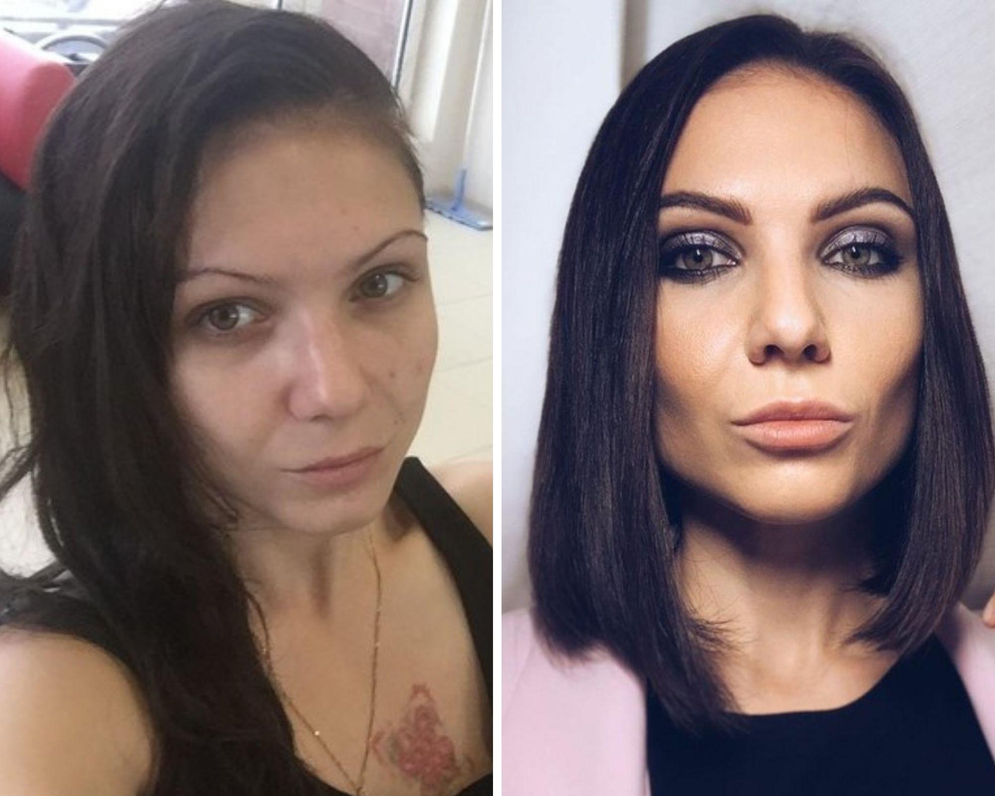 Яна до и после. Фото © Spid.center.ru