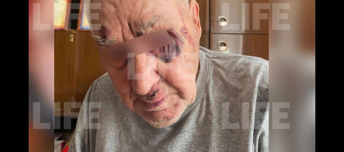 1178456762011.7197 Под Красноярском неизвестный избил ветерана Великой Отечественной из-за 20 тысяч рублей