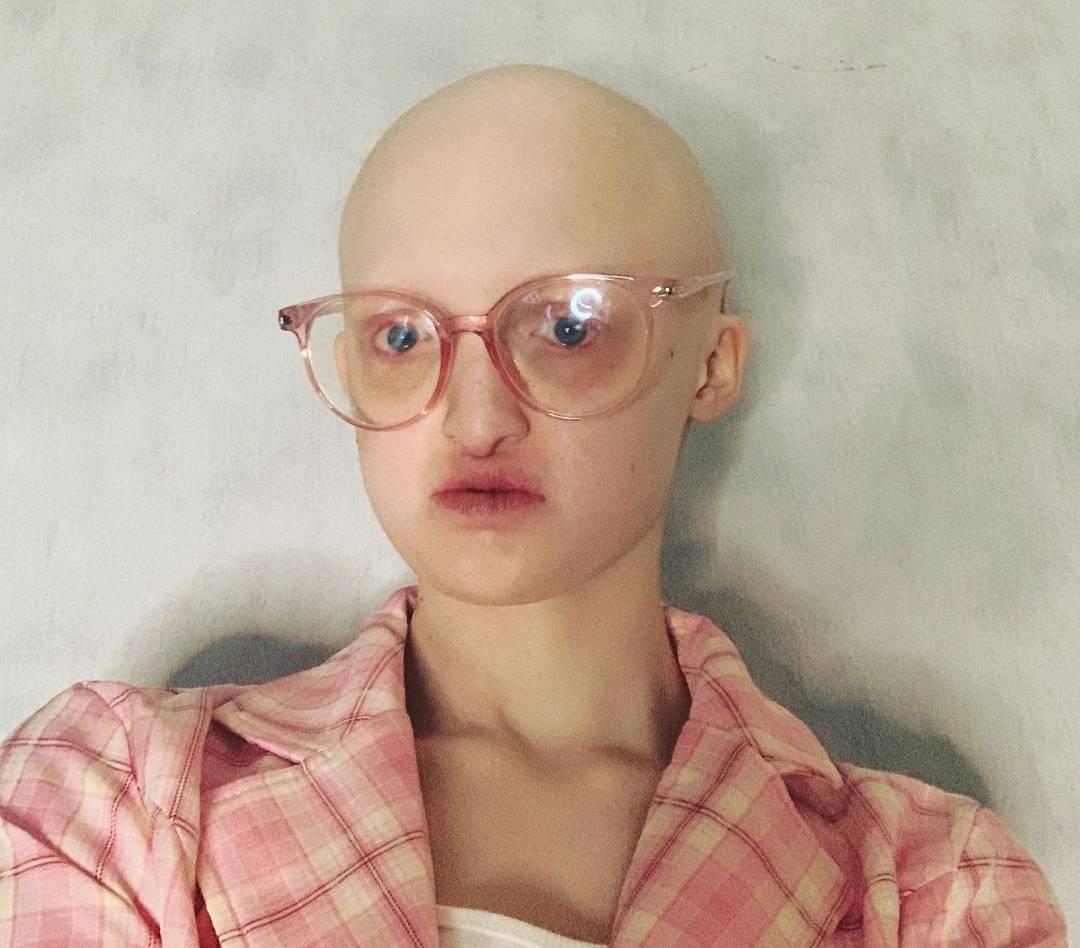 Лысая и глухая девушка с болезнью, которой страдают 30 человек в мире, стала моделью на зависть всем