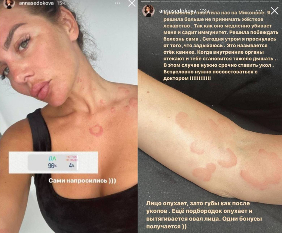 Скриншоты © Instagram / annasedokova