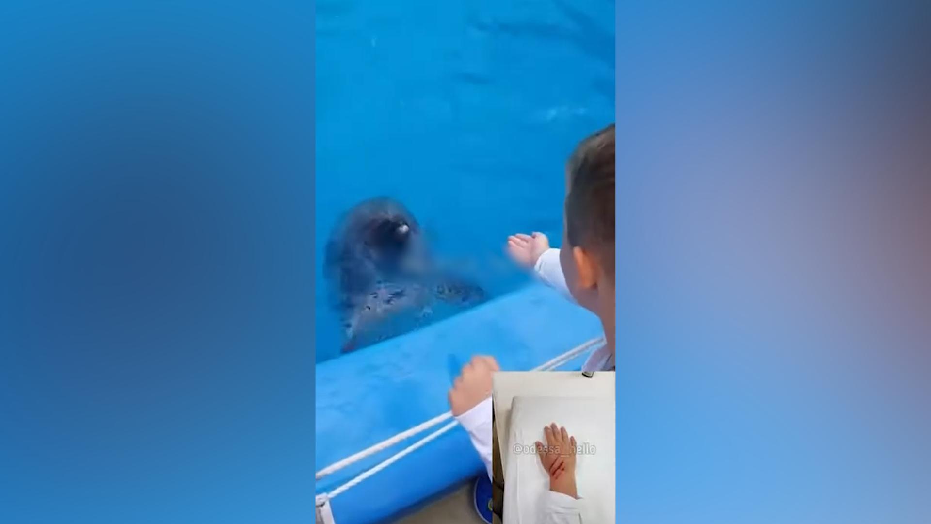 В Одессе дельфин укусил ребёнка за руку, но в Сети винят только его маму, которая снимала на камеру