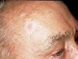 Базалиома. Фото © The Skin Cancer Foundation