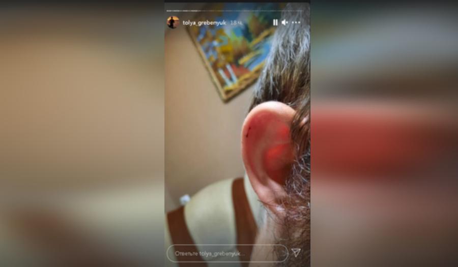 Побитый неадекватной пассажиркой cлабослышащий таксист из Энгельса написал заявление в полицию. Фото © Instagram / tolya_grebenyuk