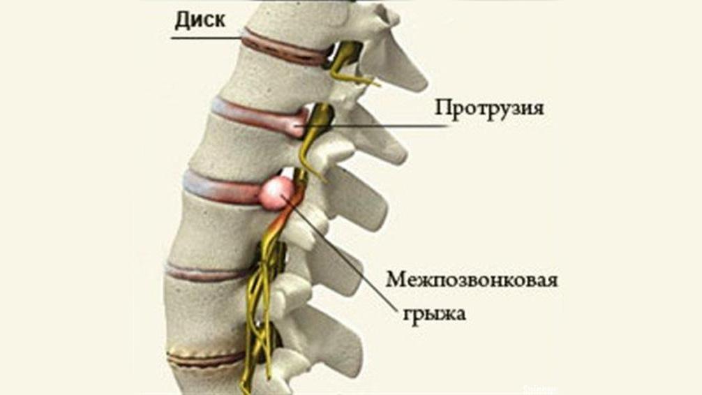 Протрузия, грыжа и хондроз — профильные заболевания инкассаторов. Фото © helportoped.ru