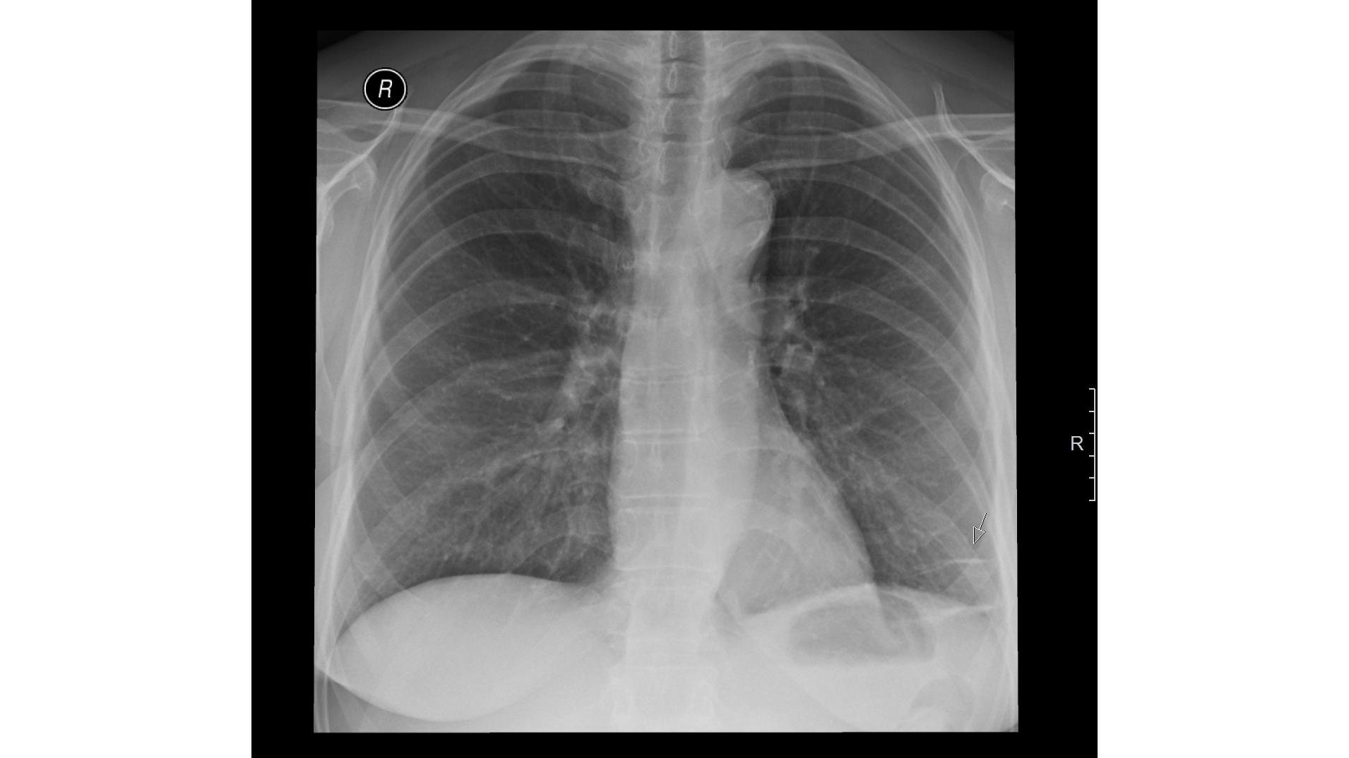Рентгеновский снимок лёгких пациента с фиброзом. Фото © radiomed.ru