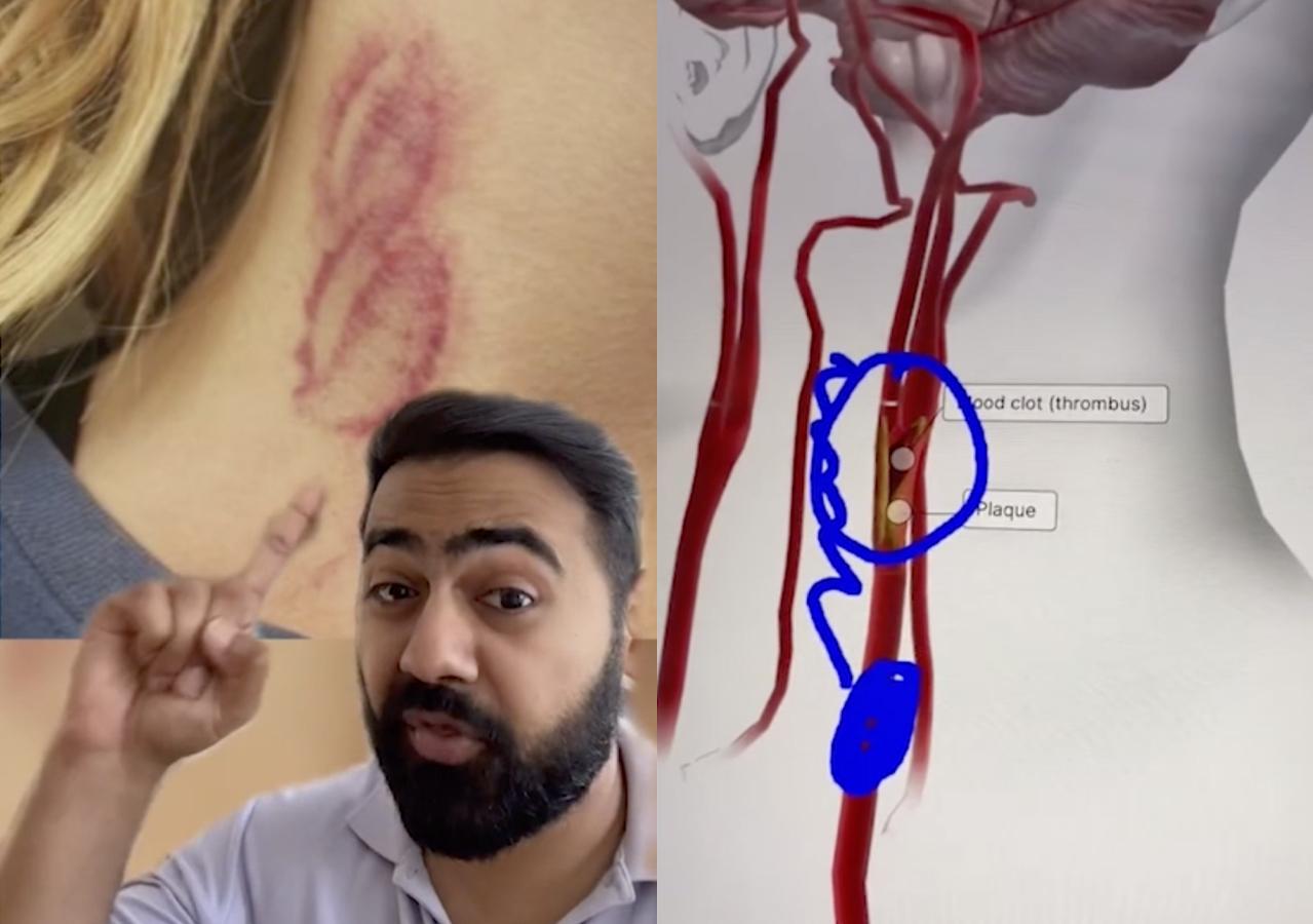 Кадры из видео © TikTok/dr.karanr
