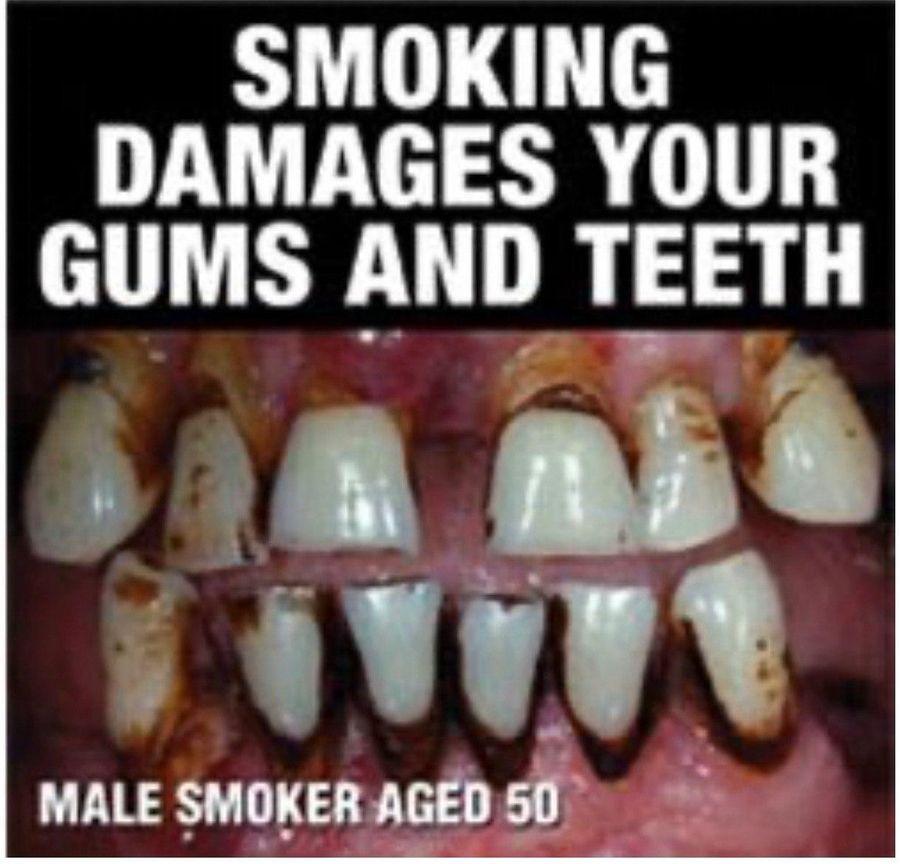 Австралийские сигареты показывают зубы 50-летнего курильщика