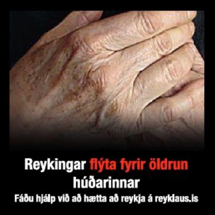 Пачка сигарет в Исландии рассказывают о том, что курение старит кожу