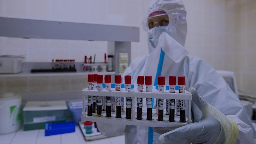Переставали чувствовать запах и вкус. Заражённые коронавирусом стали жаловаться на новые симптомы